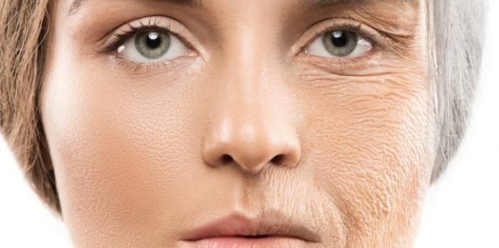 ۵ خوراکی که پوست آدمی را زود پیر میکند