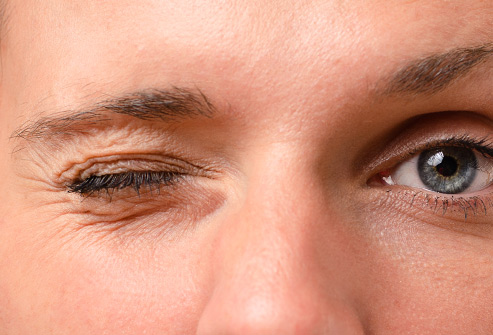 علت پرش پلک چشم چیست؟