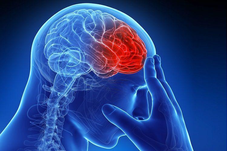 سکته مغزی دومین عامل مرگ ایرانیها