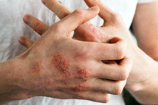 برای جلوگیری از «اگزمای دست» چه باید کرد؟