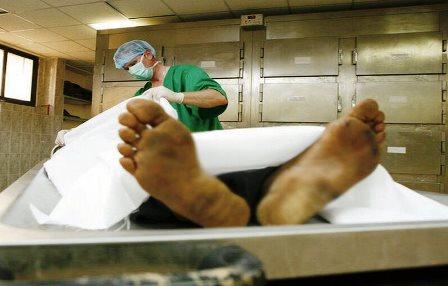 درمان ١۴٠بیمار با استفاده از بافت یک جسد
