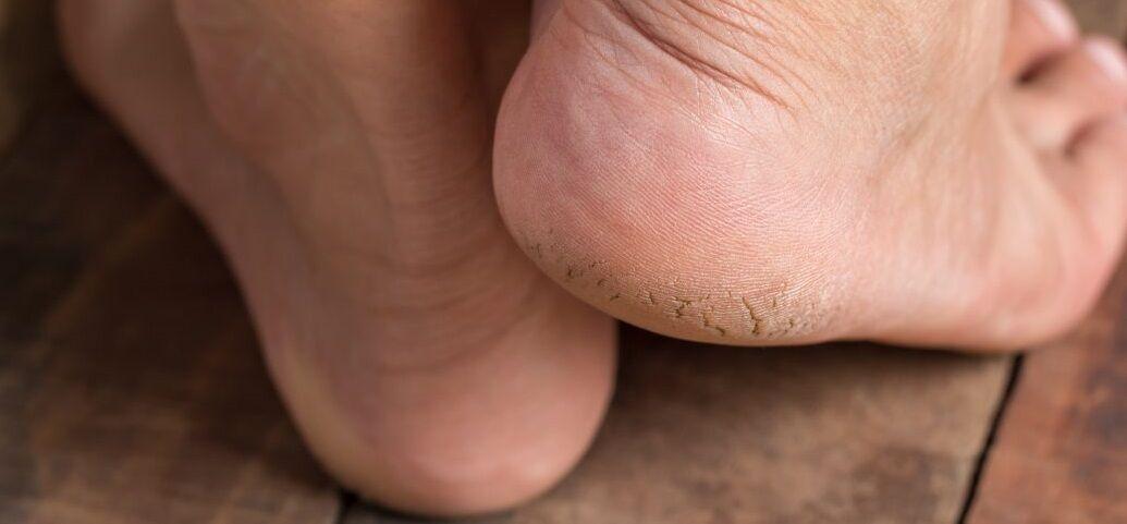 شش دلیلی که ترک پاشنه پا را توجیه میکند