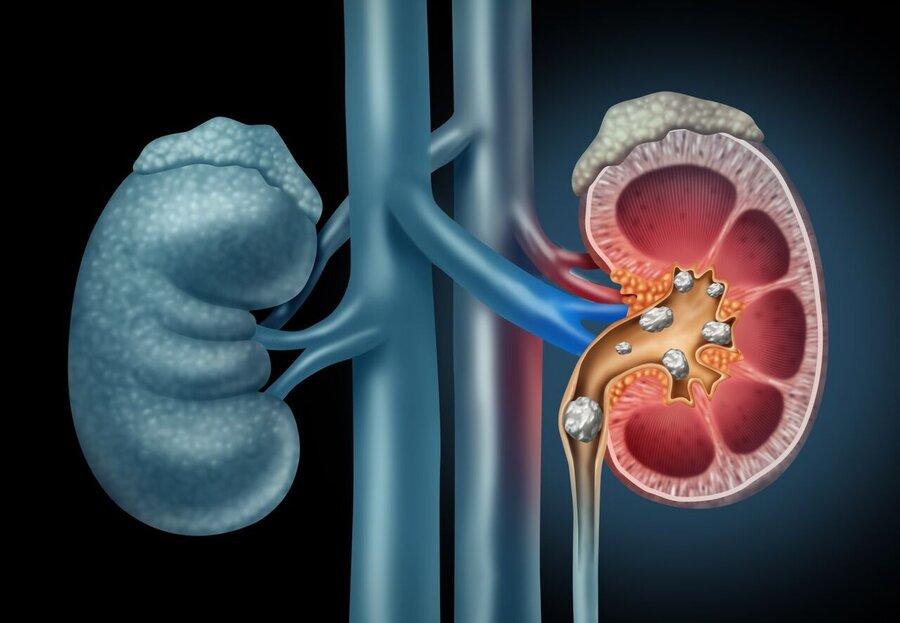 درمان سریع سنگ کلیه با ۳ روش خانگی و موثر